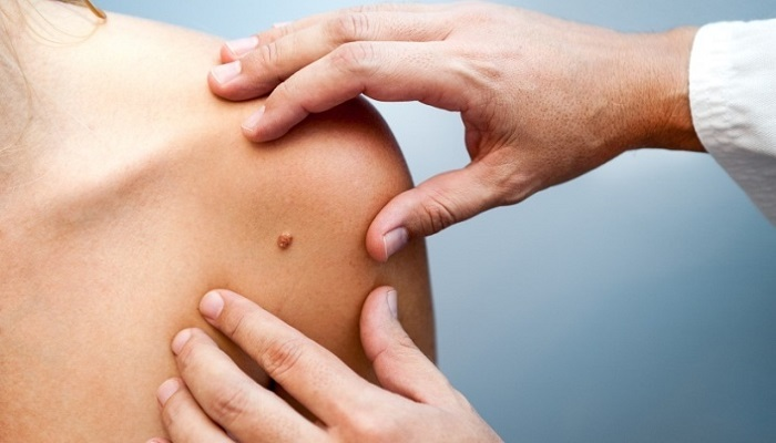 Protsessi parandamise kaalulangus Kuidas te oma keha poletate rasva