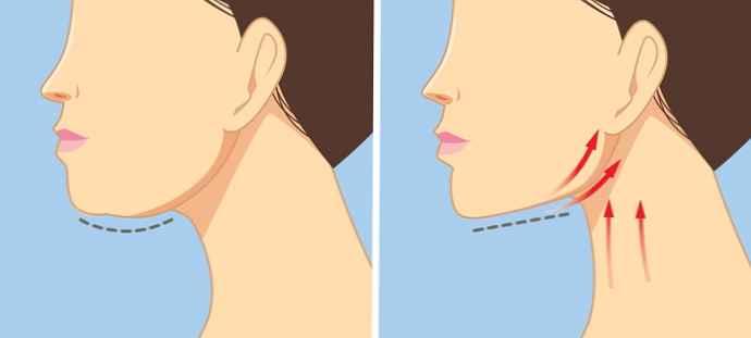 Kuidas eemaldada rasva loualt ja kaela