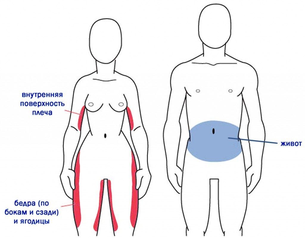 Kuidas eemaldada jalg ja reie rasv Uhised toiduainete kaalulangus