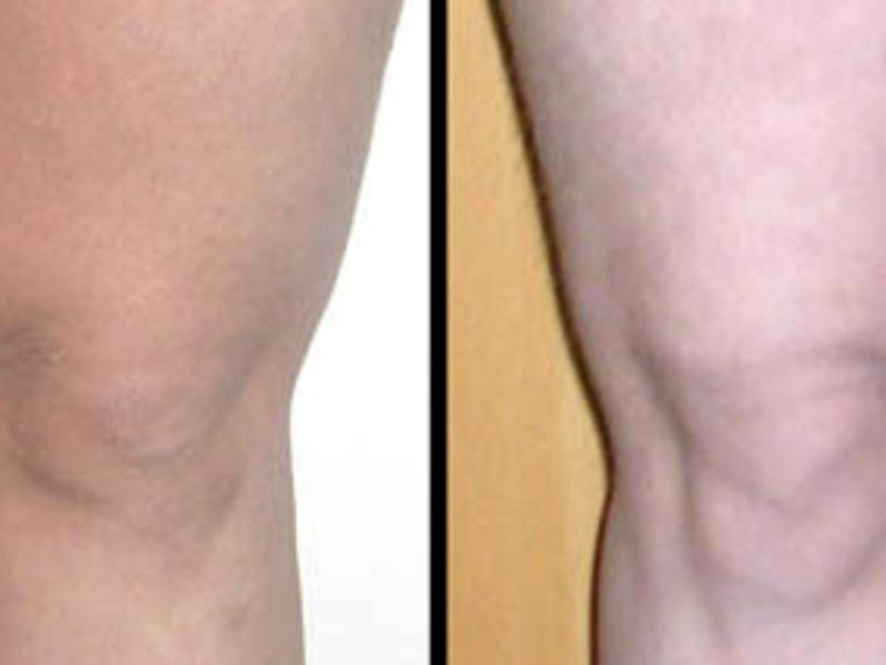 Kas korgem metabolismi poleb rasva Janute kiire kaalulangus vasimus