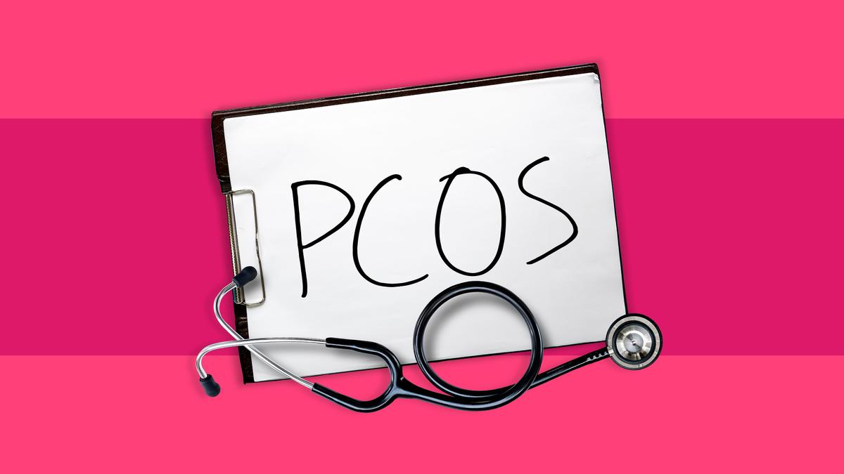 PCOS-i sumptomid ja kaalulangus