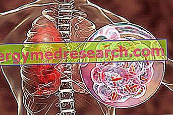Kiire kaalulangus Pneumoonia Ultimate Fat Loss Guide PDF